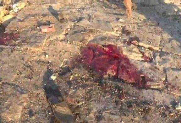 إصابة مواطن بنيران حرس الحدود السعودي في صعده.